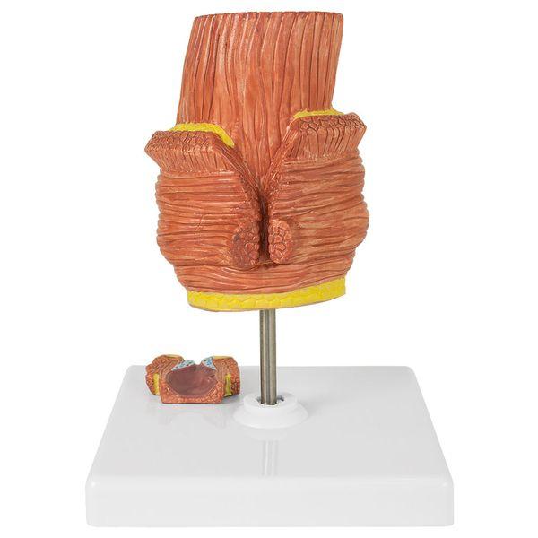 Rektum Enddarm Anatomie Modell Hämorrhoiden Hämorrhoidenmodell Erkrankung MedMod – Bild 3