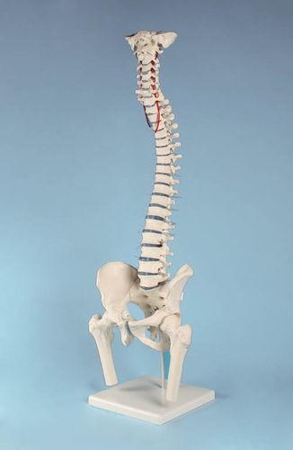 anatomisches Modell, Wirbelsäule mit Bandscheibenvorfall, Becken ...