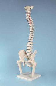 anatomisches Modell, Wirbelsäule mit Bandscheibenvorfall, Becken, Oberschenkelstümpfen und Stativ